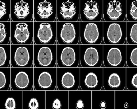 Neuroradiology tomography