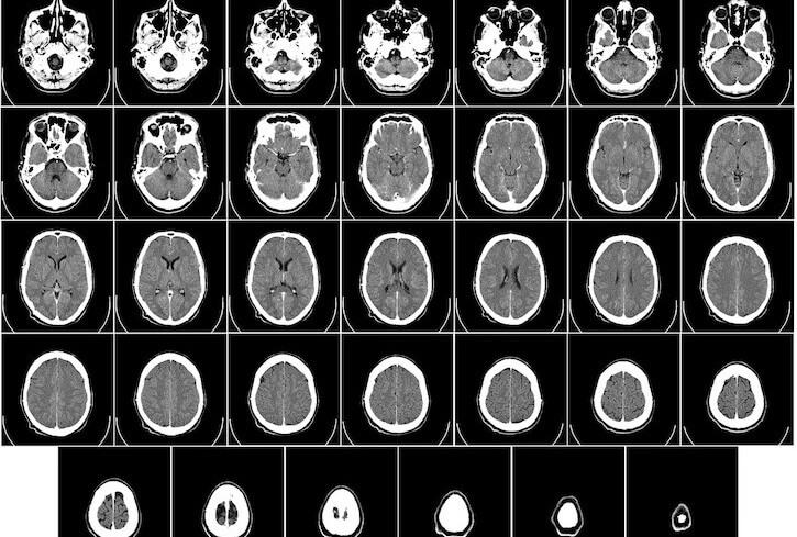 Neuroradiology tomography