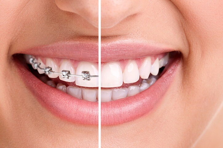 dental-center-mount