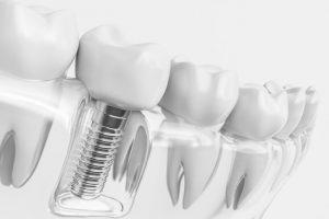 Dental Arts